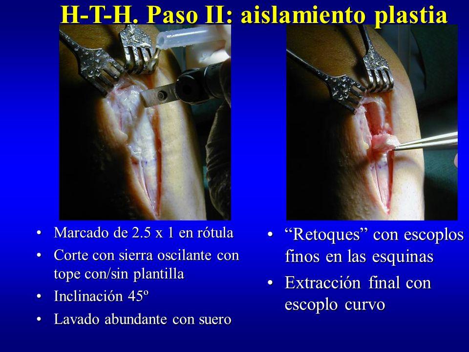 H-T-H. Paso II: aislamiento plastia