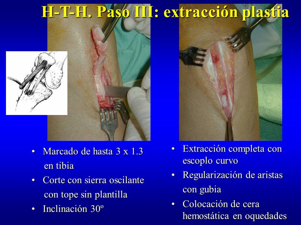 H-T-H. Paso III: extracción plastia
