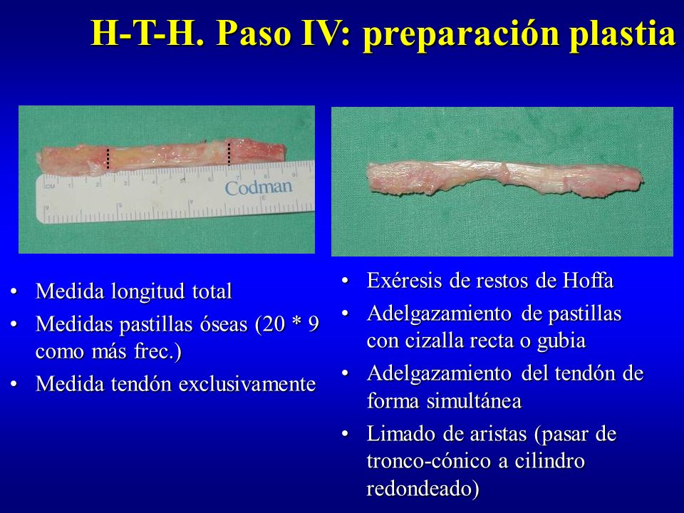 H-T-H. Paso IV: preparación plastia