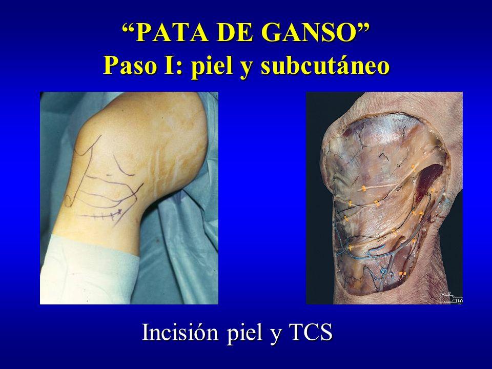 PATA DE GANSO Paso I: piel y subcutáneo