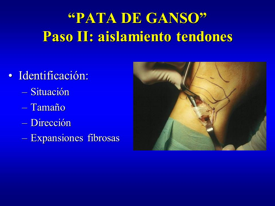 PATA DE GANSO Paso II: aislamiento tendones