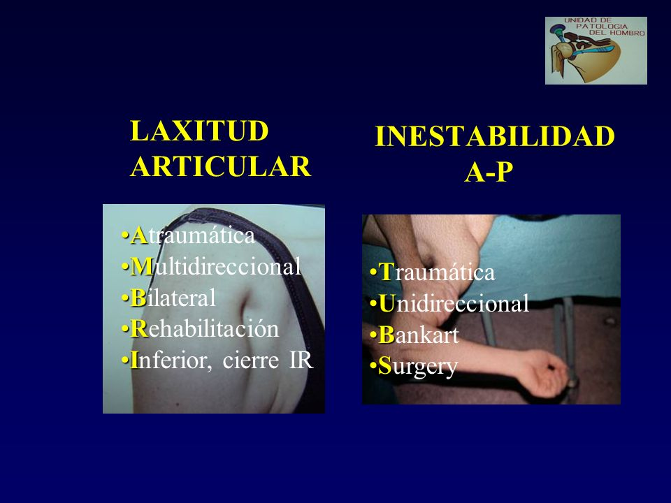 INESTABILIDAD A-P LAXITUD ARTICULAR Atraumática Multidireccional