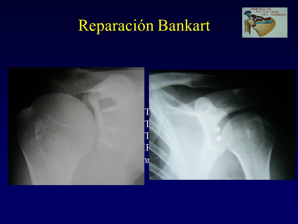 Reparación Bankart Liberar labrum (móvil) Preparar cara glenoides