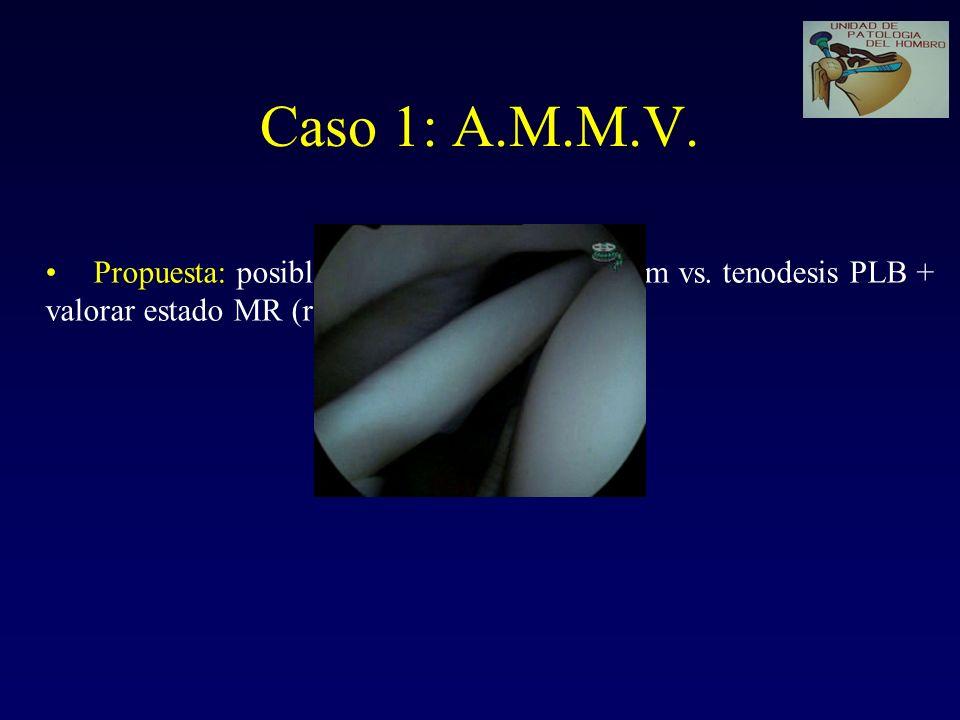 Caso 1: A.M.M.V. Propuesta: posible reconstrucción del labrum vs.
