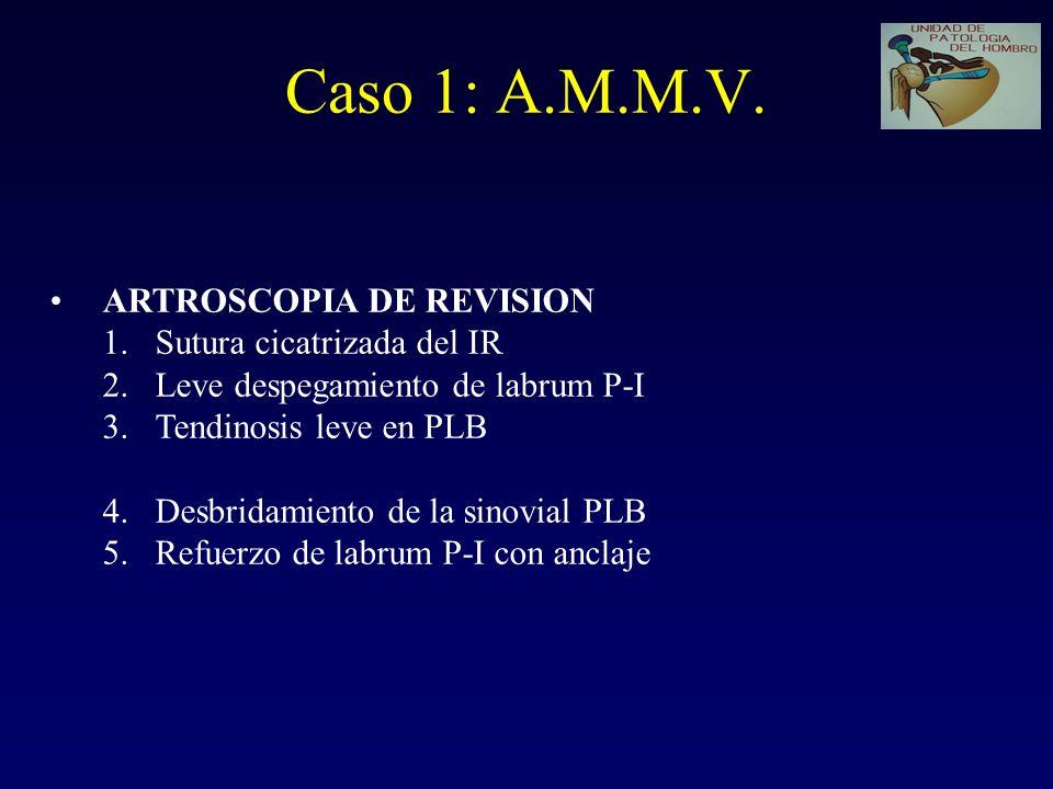 Caso 1: A.M.M.V. ARTROSCOPIA DE REVISION Sutura cicatrizada del IR