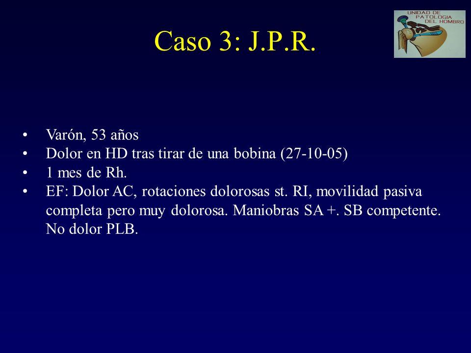 Caso 3: J.P.R. Varón, 53 años. Dolor en HD tras tirar de una bobina (27-10-05) 1 mes de Rh.