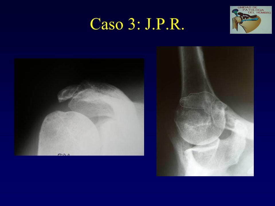 Caso 3: J.P.R. Acromion tipo II. Artrosis AC. Secuelas fx de acromion vs os acromiale