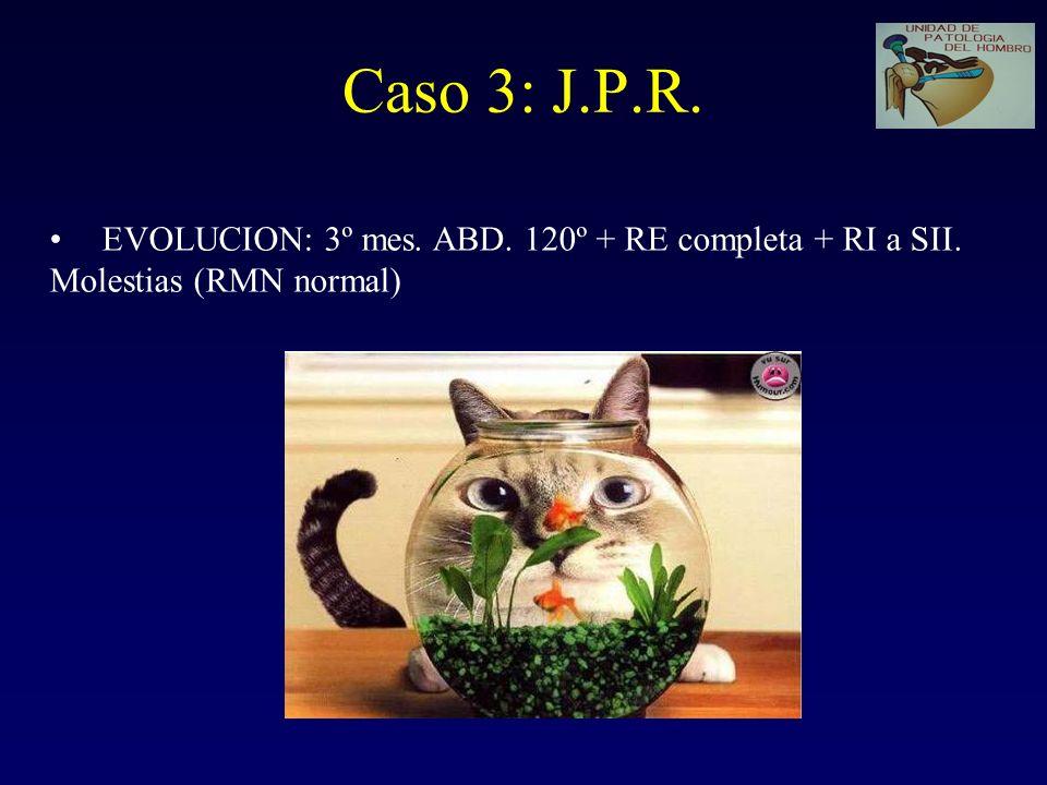 Caso 3: J.P.R. EVOLUCION: 3º mes. ABD. 120º + RE completa + RI a SII.