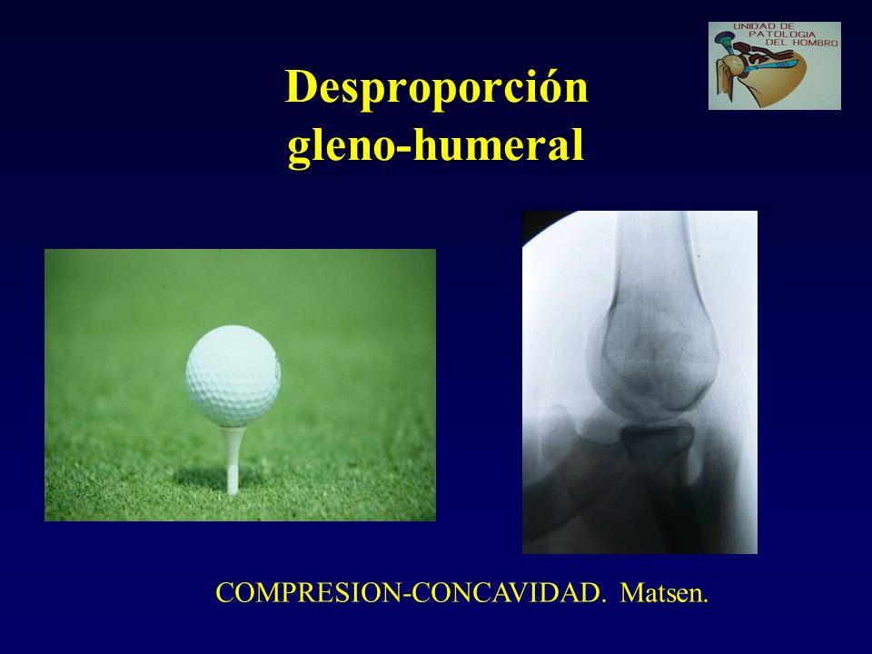Desproporción gleno-humeral