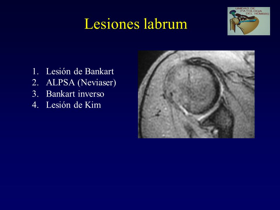 Lesiones labrum Lesión de Bankart ALPSA (Neviaser) Bankart inverso