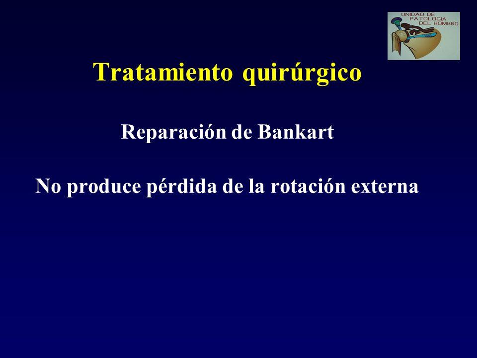 Tratamiento quirúrgico Reparación de Bankart No produce pérdida de la rotación externa