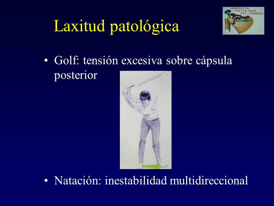 Laxitud patológica Golf: tensión excesiva sobre cápsula posterior