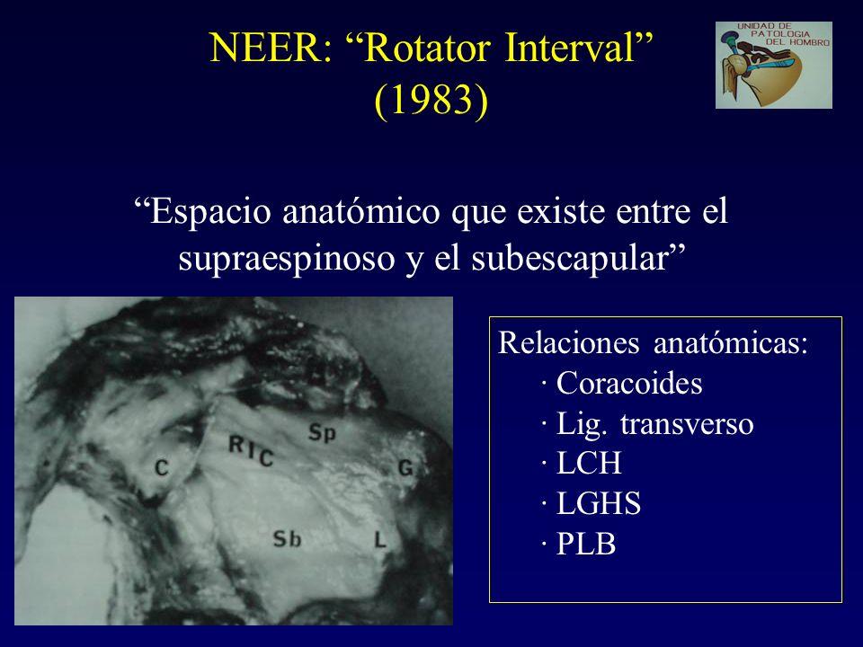 NEER: Rotator Interval (1983) Espacio anatómico que existe entre el supraespinoso y el subescapular