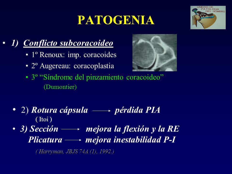 PATOGENIA 2) Rotura cápsula pérdida PIA 1) Conflicto subcoracoideo