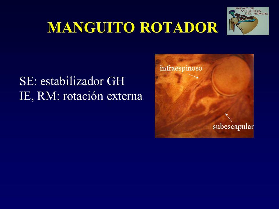 MANGUITO ROTADOR SE: estabilizador GH IE, RM: rotación externa