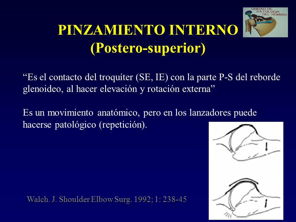 PINZAMIENTO INTERNO (Postero-superior)