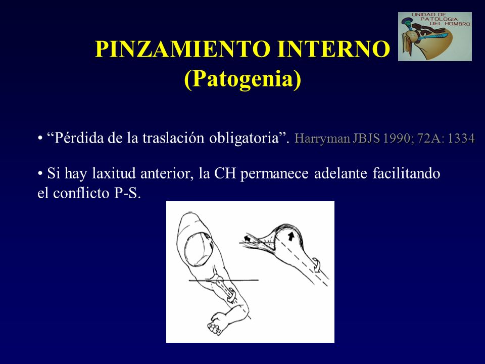PINZAMIENTO INTERNO (Patogenia)
