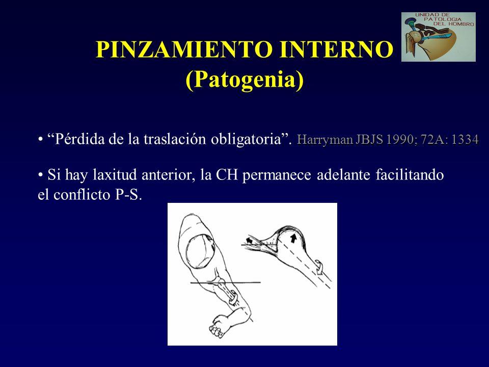 PINZAMIENTO INTERNO (Patogenia)