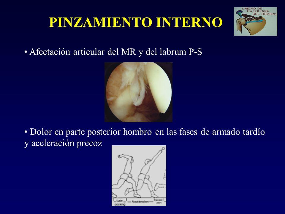 PINZAMIENTO INTERNO Afectación articular del MR y del labrum P-S