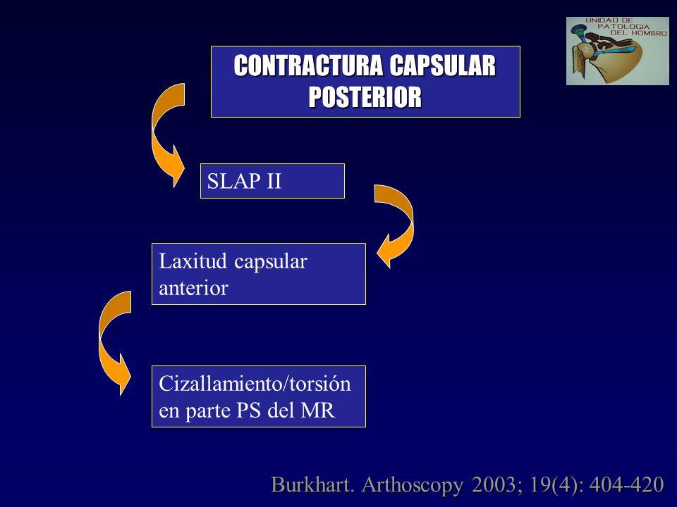 CONTRACTURA CAPSULAR POSTERIOR