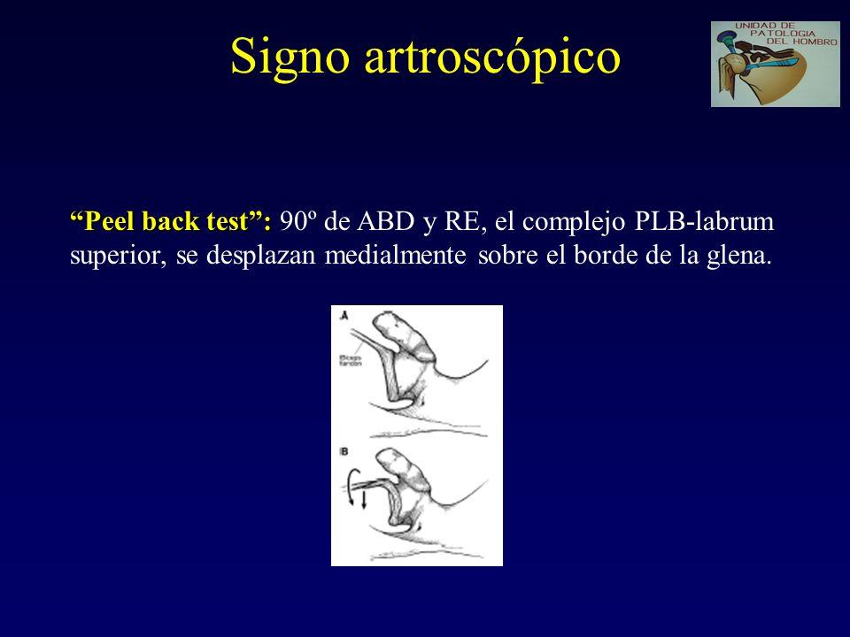 Signo artroscópico Peel back test : 90º de ABD y RE, el complejo PLB-labrum.