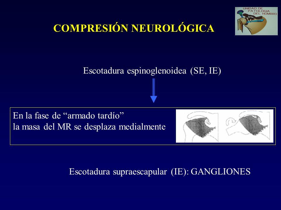 COMPRESIÓN NEUROLÓGICA