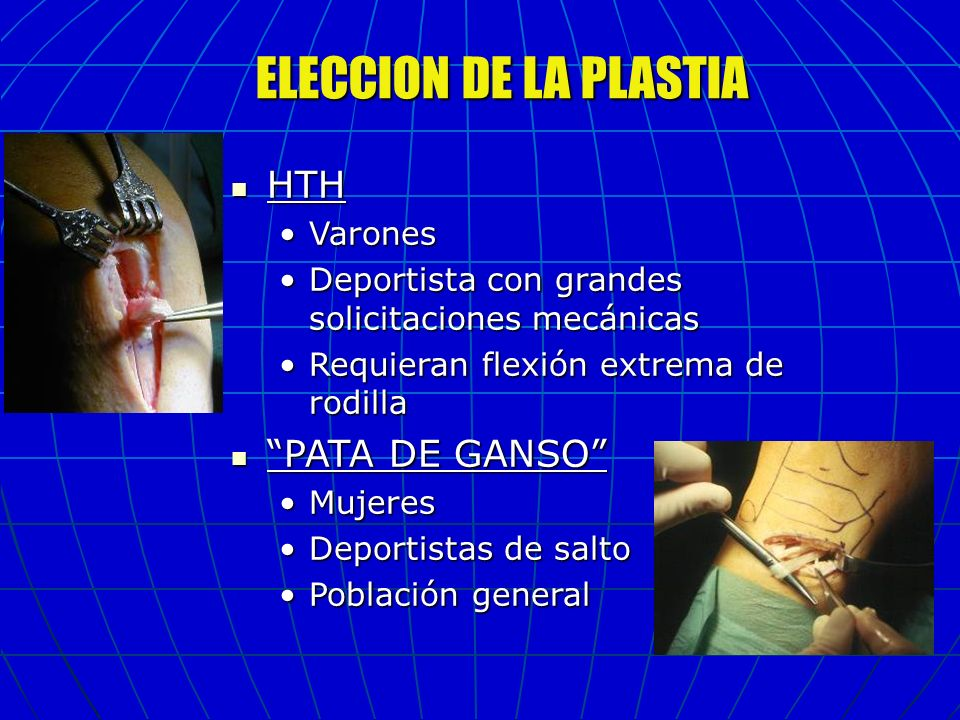 ELECCION DE LA PLASTIA HTH PATA DE GANSO Varones