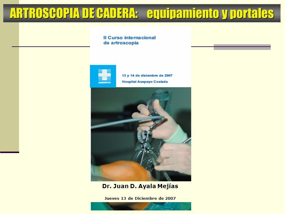 ARTROSCOPIA DE CADERA: equipamiento y portales