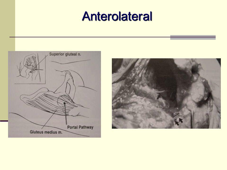 Anterolateral