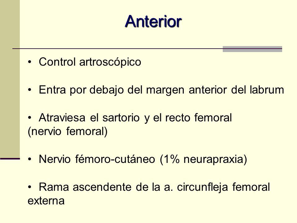 Anterior Control artroscópico