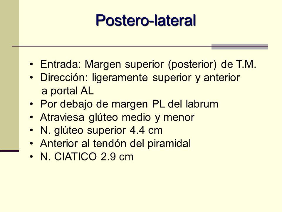 Postero-lateral Entrada: Margen superior (posterior) de T.M.