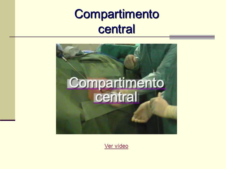 Compartimento central