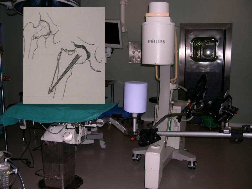 Mesa de tracción con pivote central bien almohadillado para la zona perineal para evitar neurapraxia del nervio pudendo