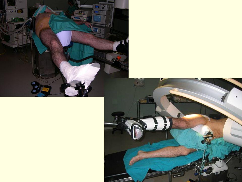 Cadera en extensión, 25º de abducción y rotación neutra
