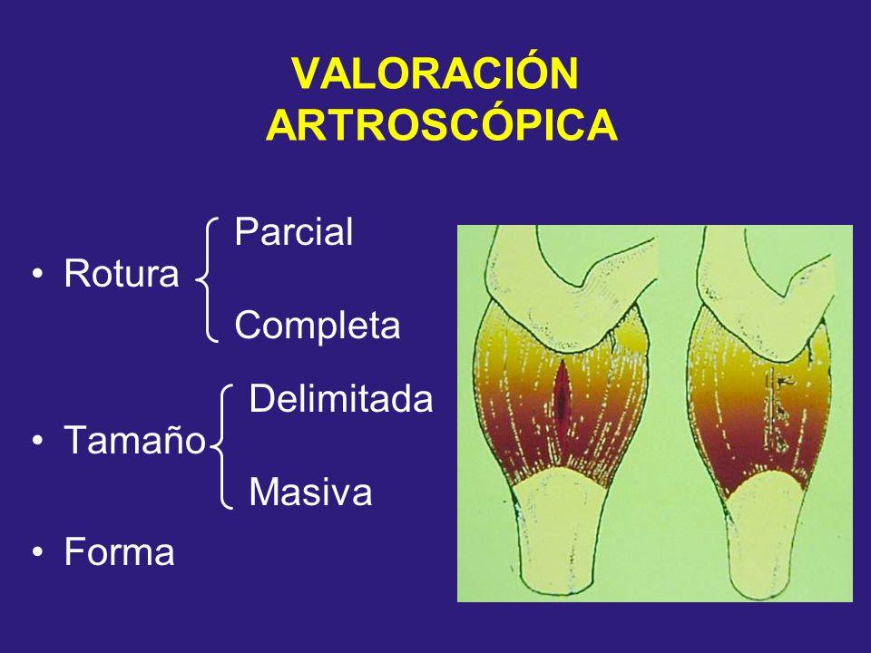 VALORACIÓN ARTROSCÓPICA