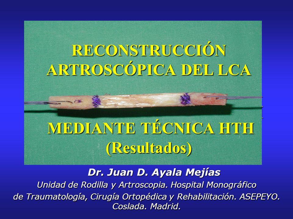 RECONSTRUCCIÓN ARTROSCÓPICA DEL LCA MEDIANTE TÉCNICA HTH (Resultados)