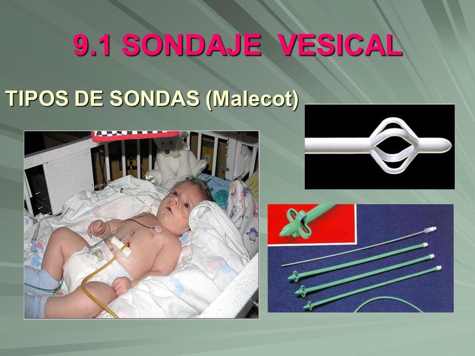 9.1 SONDAJE VESICAL TIPOS DE SONDAS (Malecot)