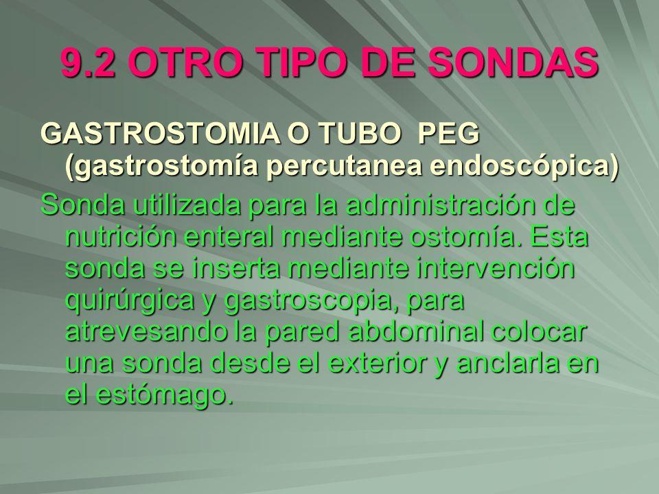 9.2 OTRO TIPO DE SONDASGASTROSTOMIA O TUBO PEG (gastrostomía percutanea endoscópica)