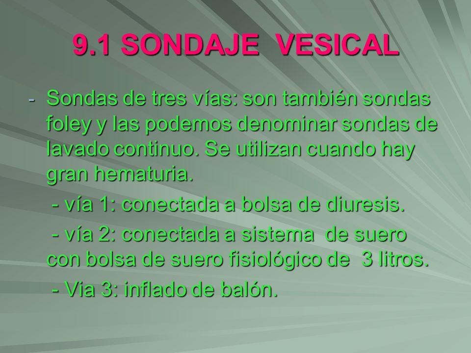 9.1 SONDAJE VESICAL