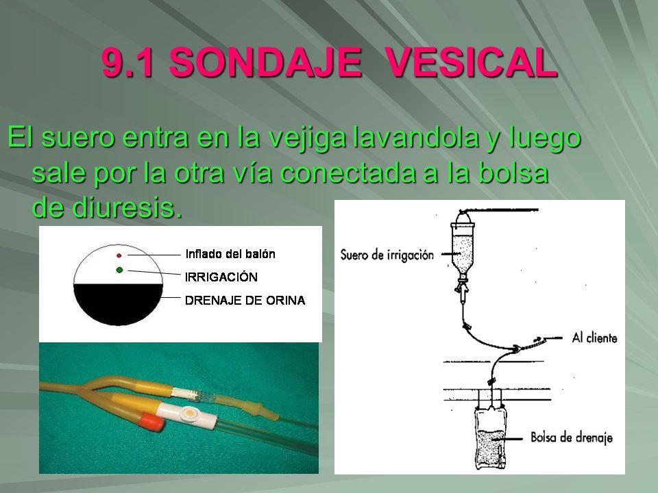 9.1 SONDAJE VESICAL El suero entra en la vejiga lavandola y luego sale por la otra vía conectada a la bolsa de diuresis.