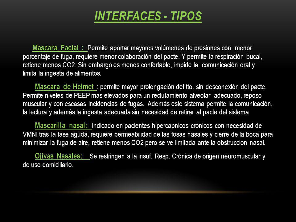 Interfaces - tipos