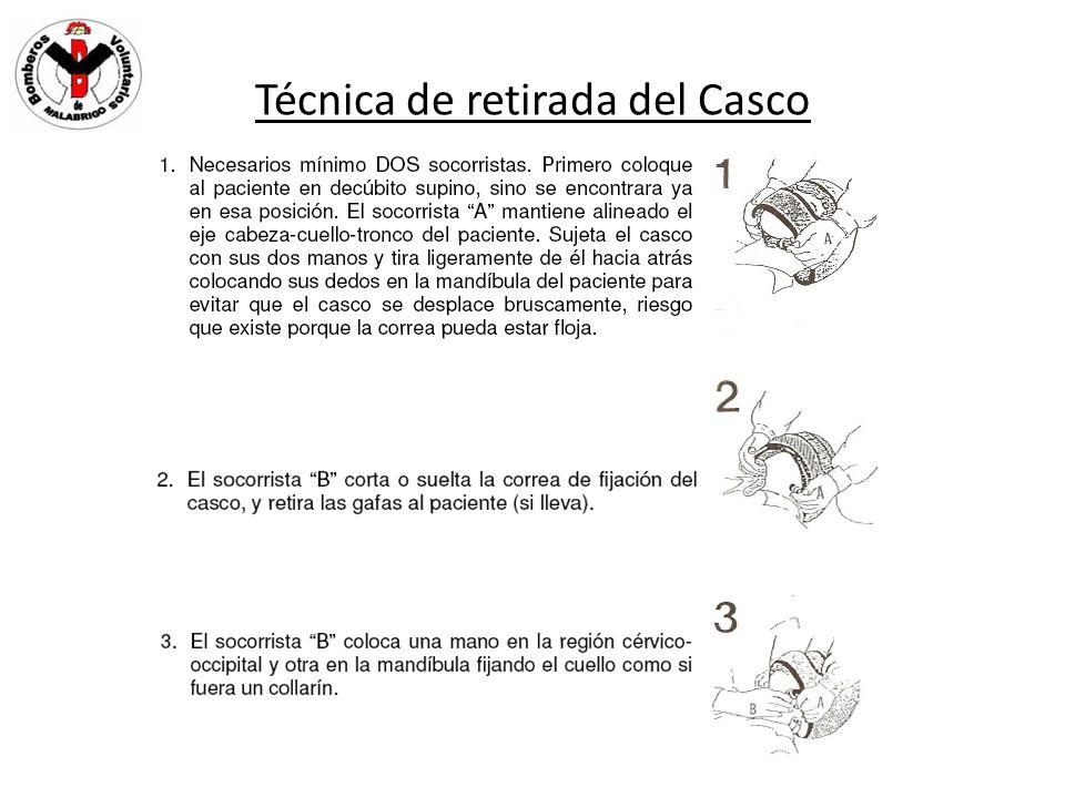 Técnica de retirada del Casco