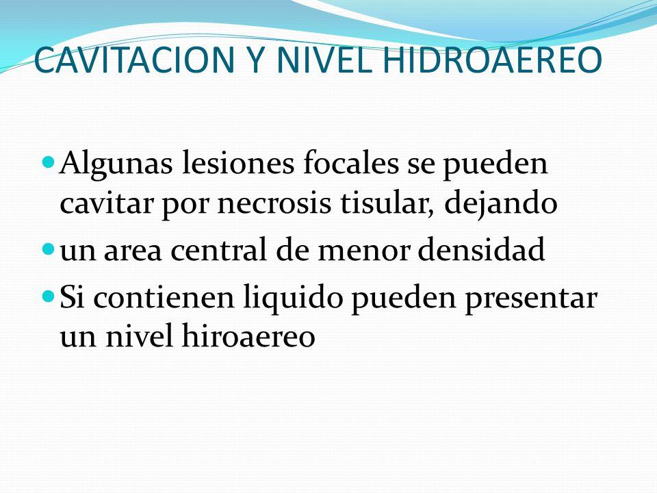 CAVITACION Y NIVEL HIDROAEREO