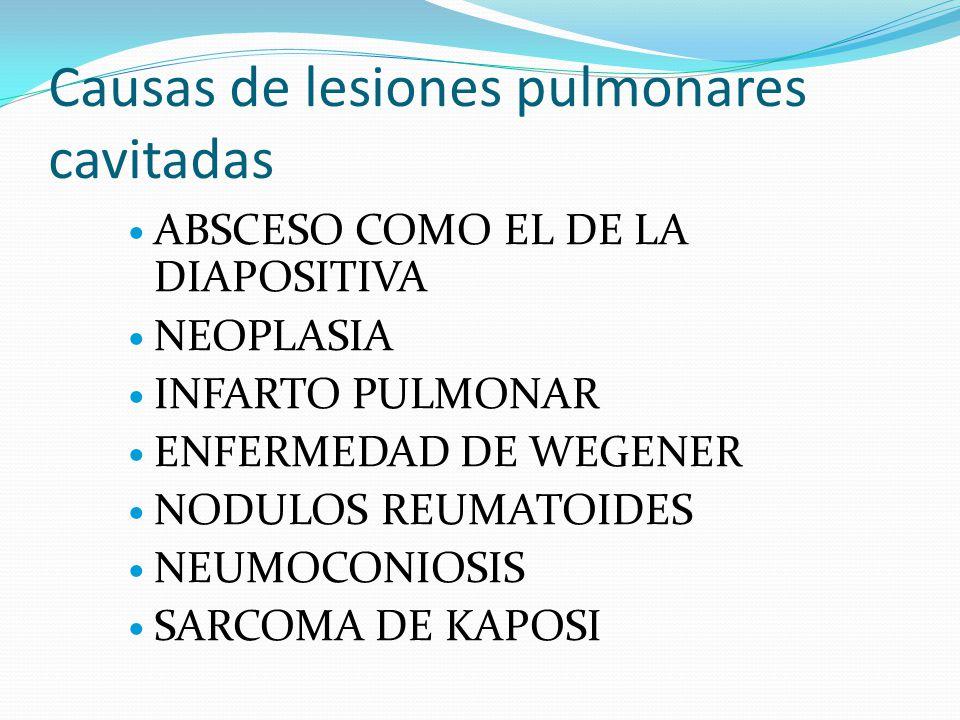 Causas de lesiones pulmonares cavitadas