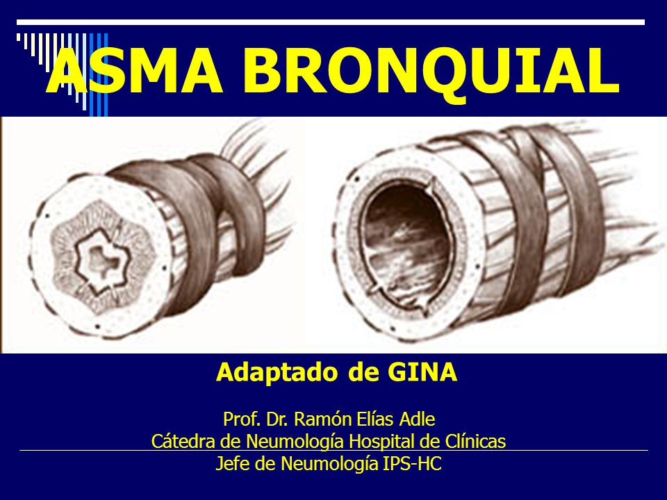 ASMA BRONQUIAL Adaptado de GINA Prof. Dr. Ramón Elías Adle