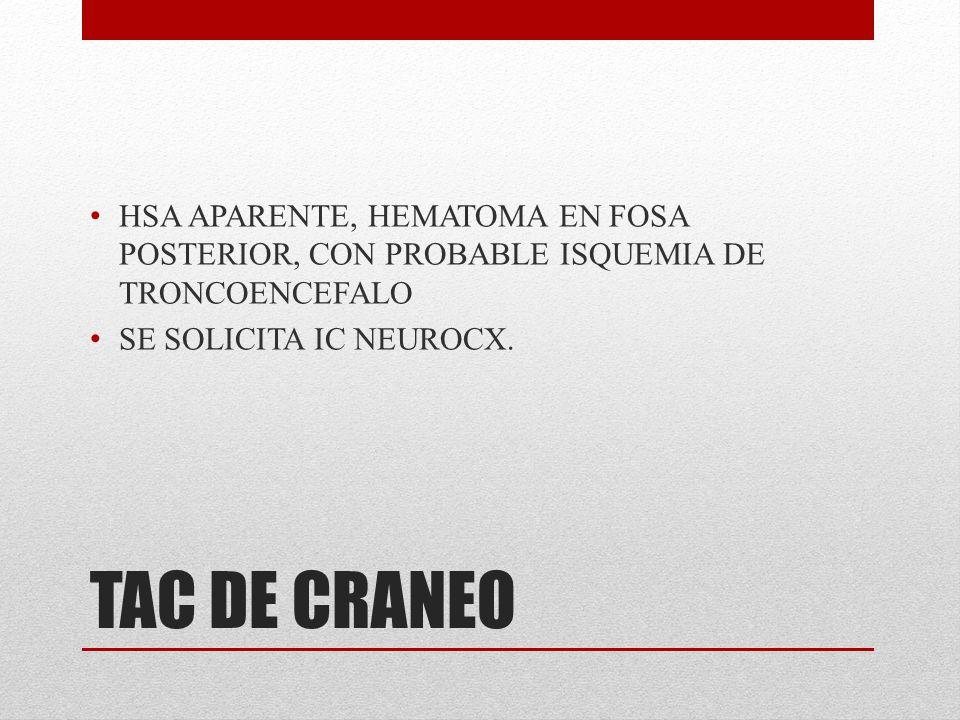 HSA APARENTE, HEMATOMA EN FOSA POSTERIOR, CON PROBABLE ISQUEMIA DE TRONCOENCEFALO