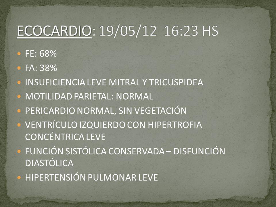 ECOCARDIO: 19/05/12 16:23 HS FE: 68% FA: 38%