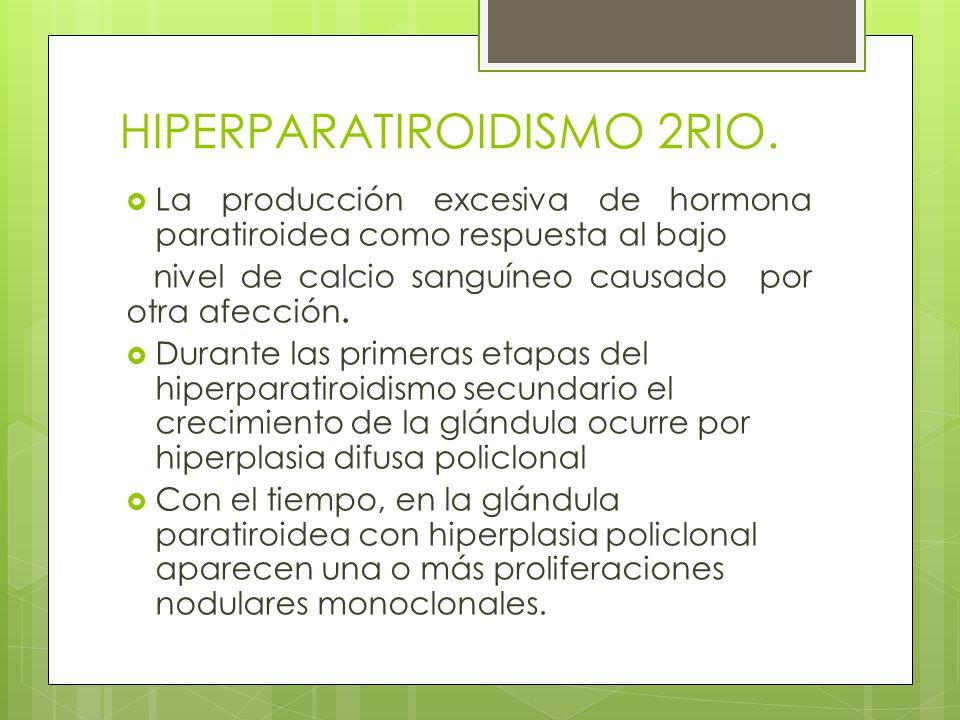 HIPERPARATIROIDISMO 2RIO.