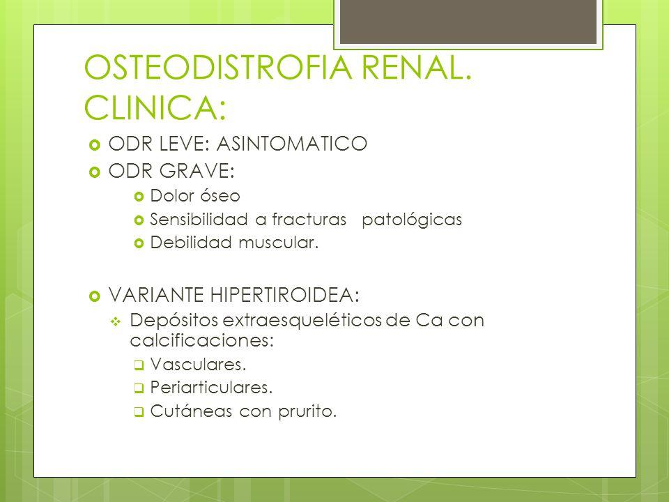 OSTEODISTROFIA RENAL. CLINICA: