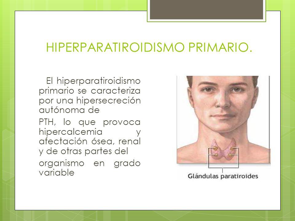 HIPERPARATIROIDISMO PRIMARIO.